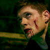 Late Night Drops of Random: Bloody Dean looking up