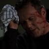 rebelxxwaltz: giles head injury