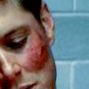 xwacky: spn dean bruised