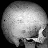 Dr. Grey: Skull.