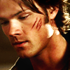 "Swedish for ""Smith"": SPN Sam scratchedface"