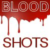 blood shots