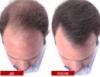 загуститель волос