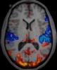 fMRI, мозг