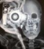 фотоскелетик