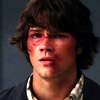 02x01 Hurt Sammy