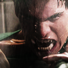 Teen wolf- (405) Liam's PISSED