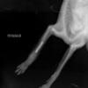 перелом, Шура, рентген, штифты