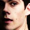 Teen Wolf // Stiles close