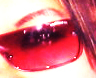 rose colored lenses