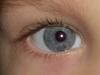 Глаз Арсения