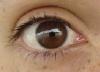 Aut's Eye