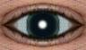 глаз нумер 0