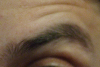 pseudomonas: eyebrow