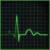 spark_of_chaos: EKG