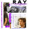 Ray ER