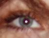 Ми: око