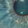 Misanthropic extrovert: eye
