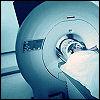 Ockette: MRI