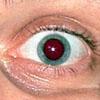 глаз нумер 2