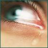 Eye; Aqua Cry