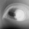 Eye Neg