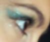 Marissa: eye