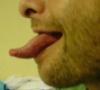Hospital-Tongue