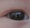 Edgar Eye