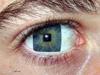 Глазъ. =)