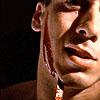 Miguel bleeding