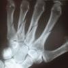 broken hand 2