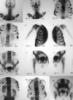 skeleton, x-ray