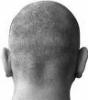 bald guy back