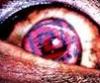 redrumfeileb userpic