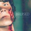 Manu: sam bruised