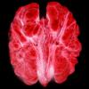 walnut brain