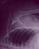 ravenfrogsuperk [userpic]