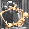 Bones: Bones