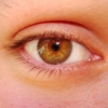 marmalade, eye