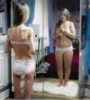 Anorexia and Bulemia