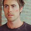 Stephen bruise