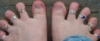 mother of the angry mob: TOES!!!