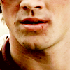 Chrissy: SPN: Sam cut lip