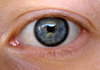 eyeball 2009