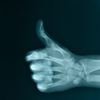Mish: Misc -- Thumbs Up X-Ray