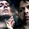 bruised and bloody dean and cas